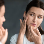 Stress and Skin – Are Stress and Anxiety Linked to Serious Skin Problems?